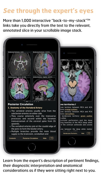 Radiology - Imaging in Stroke screenshot-3
