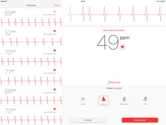 Cardiographe