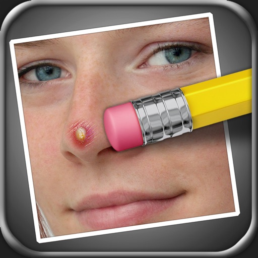 Pimple Eraser