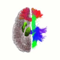 NeuroNavigator