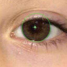 EyeStrab