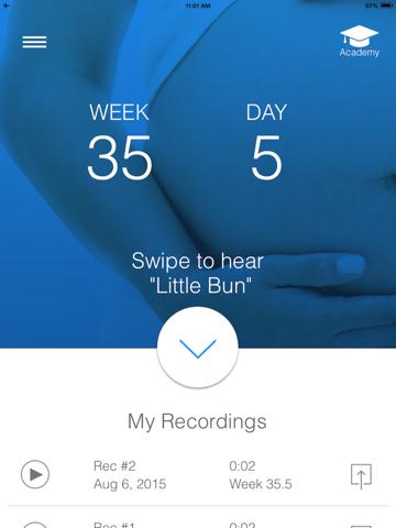 BabyScope 胎児の心拍を聞くのおすすめ画像3