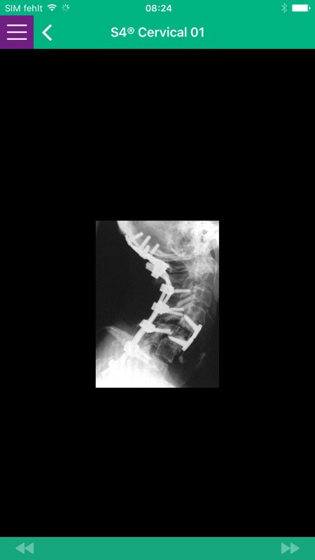 AESCULAP Spine Cervical - Online Game Hack and Cheat