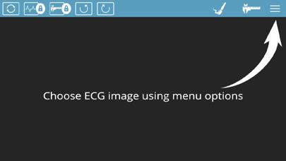 ECG Analyser screenshot two