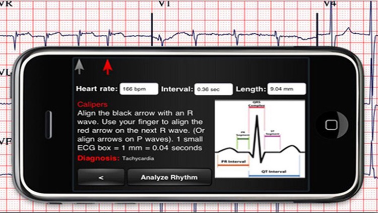 ECG Interpreter screenshot-3