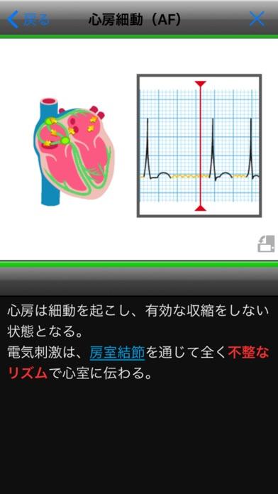 らくらく心電図トレーニング(英語モード付き)スクリーンショット