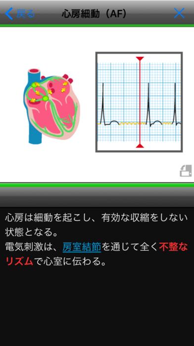 らくらく心電図トレーニング(英語モード付き) ScreenShot1