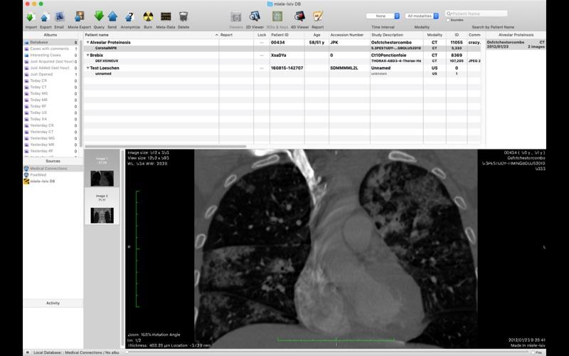 Miele-LXIV скриншот программы 1