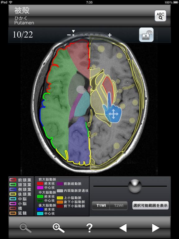 断面図ウォーカー脳MRIのおすすめ画像2