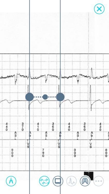 Cardiac Device Challenge screenshot-4