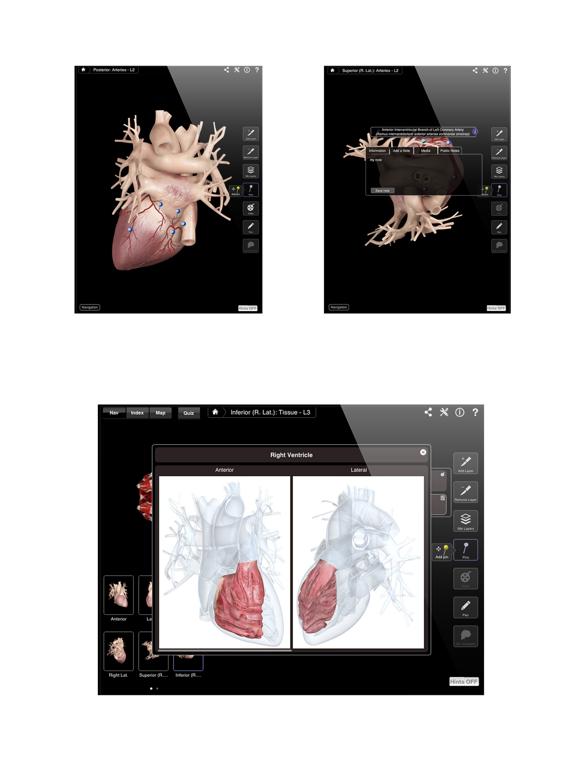 Heart Pro III Screenshot 4