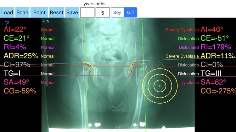 HipDysplasiaApp screenshot-4