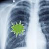 Pneumonia Guide