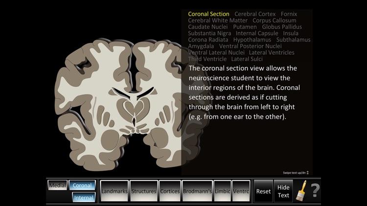 Cerebrum ID