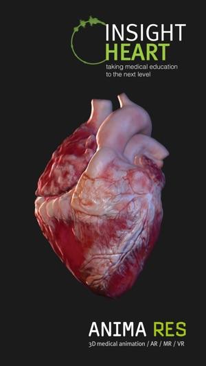INSIGHT HEART Screenshot