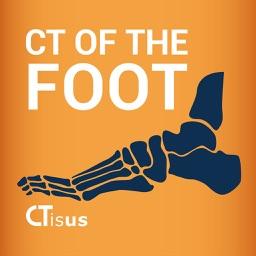 CTisus: CT of the Foot