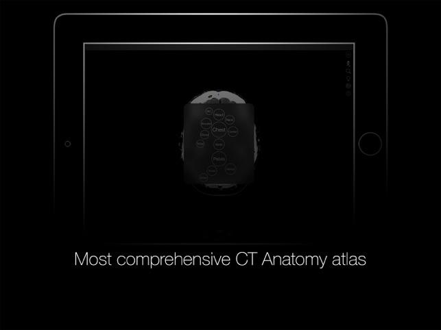 Radiology Anatomy en App Store