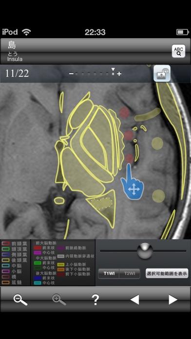 断面図ウォーカー脳MRI screenshot1