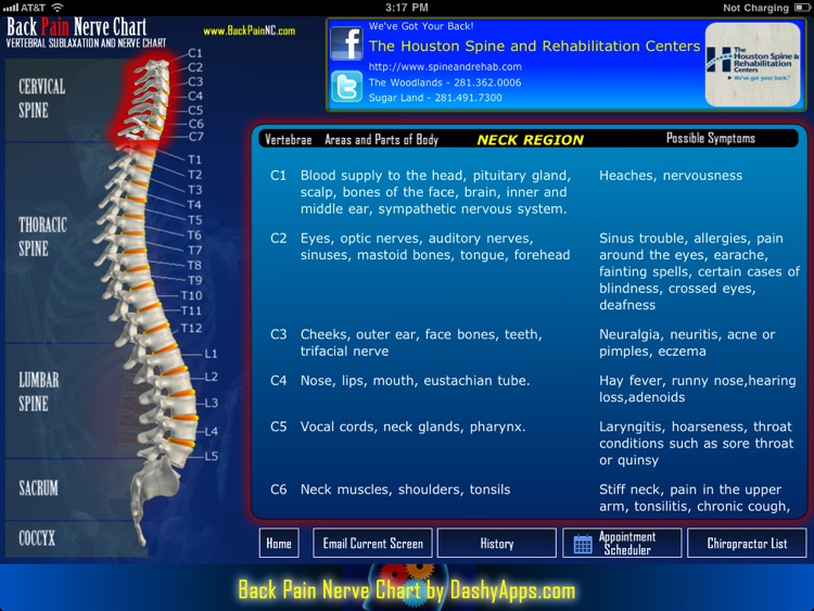 Back Pain Nerve Chart
