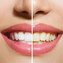 Teeth Whitening Tips - Learn How to Whiten Teeth