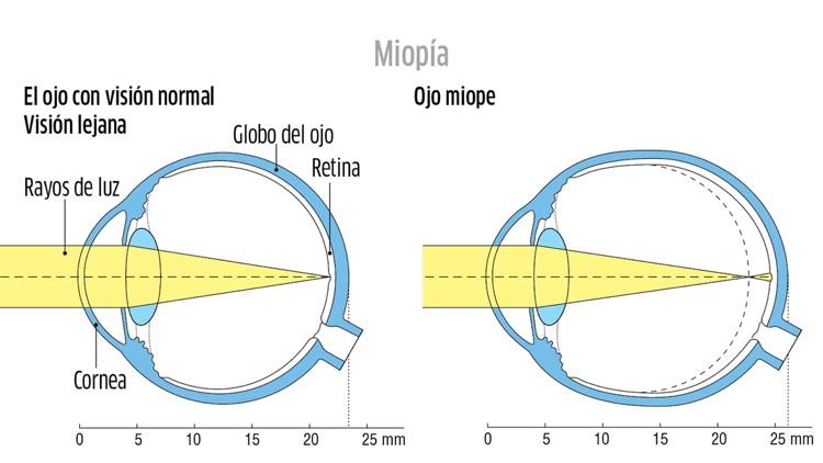 Oftalmología CAO, phone screenshot-3