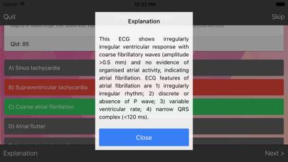 ECG Master - Quiz, Exam, Explanation, Statistic screenshot four