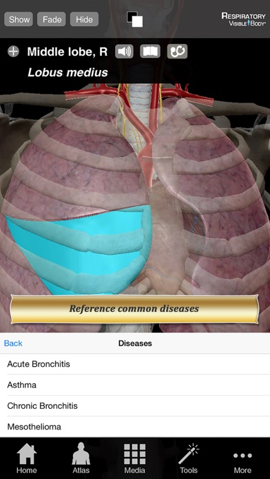 Respiratory Anatomy Atlas: Essential Reference for Students and Healthcare Professionalsのおすすめ画像5