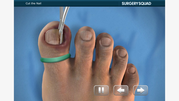 Ingrown Toenail Removal by Clearly Trained