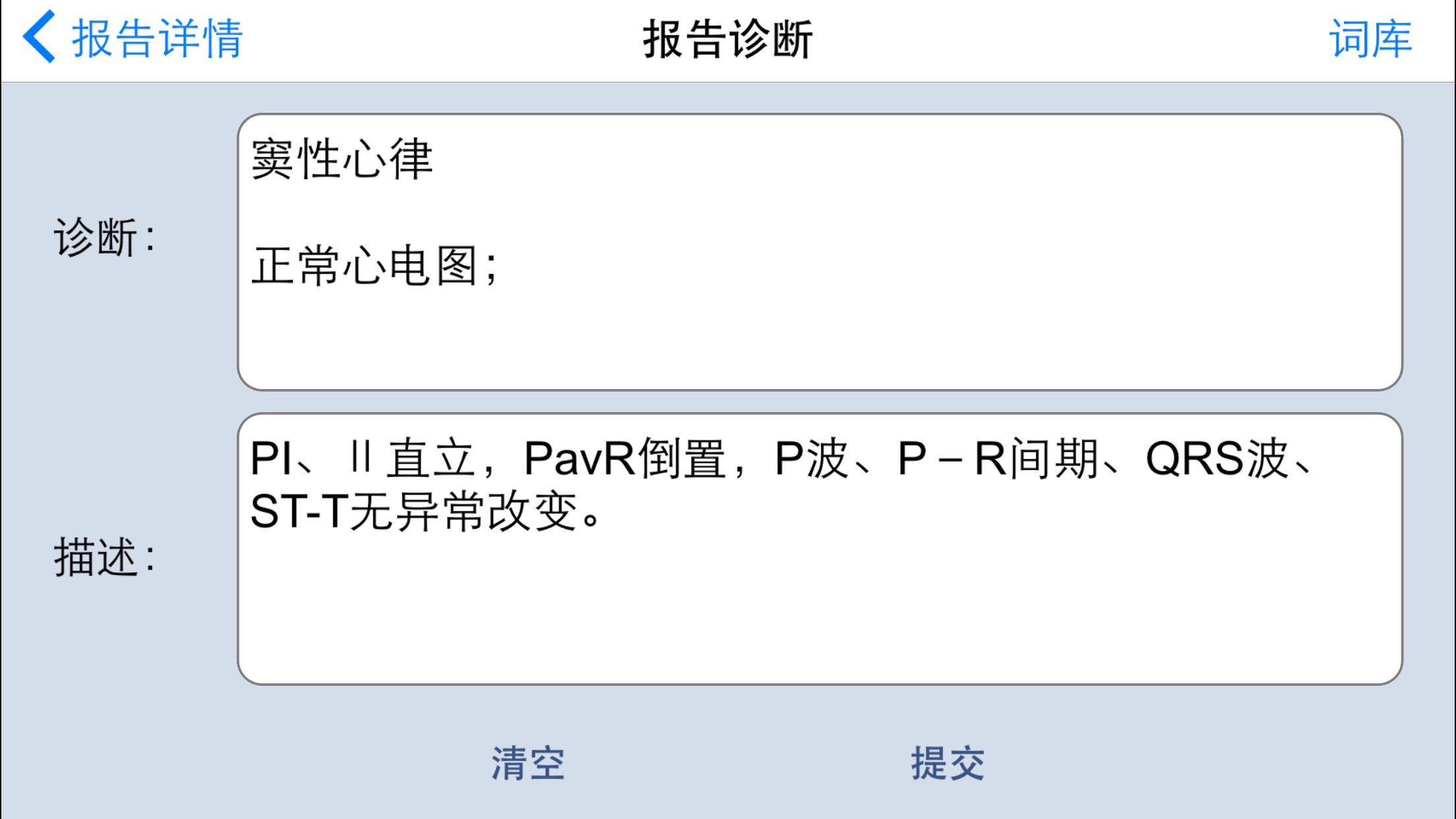 aECGViewer Screenshot