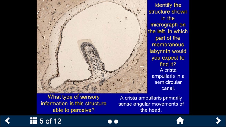 Histology - Nervous System screenshot-4