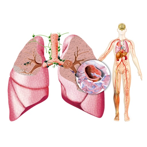 Miniatlas Lung Cancer