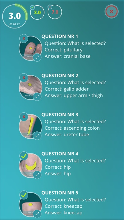 Reflexology Quiz - zones screenshot-3