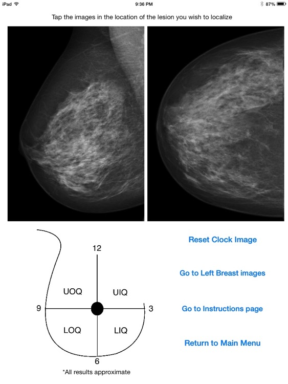 Mammography Localizer