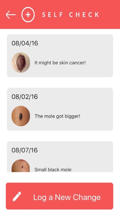 SelfCheck - Skin Cancer Prevention screenshot-3