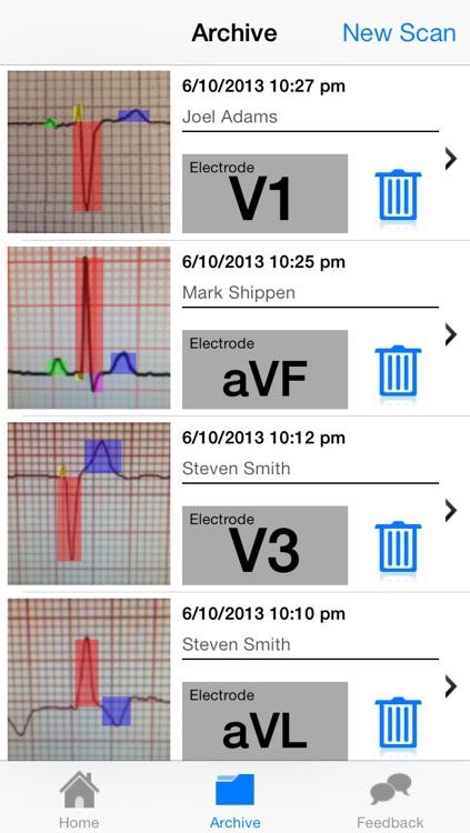 Doctor ECG - ECG Scanner, Guide and Calculator
