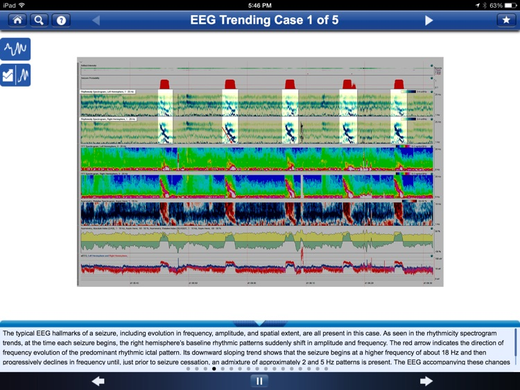 Adult EEG: An Interactive Reading Session screenshot-3