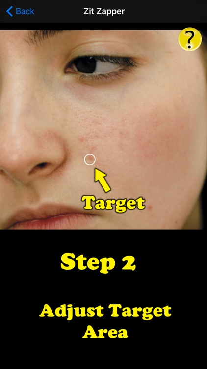 Zit Zapper Pro - Acne Remover screenshot-2