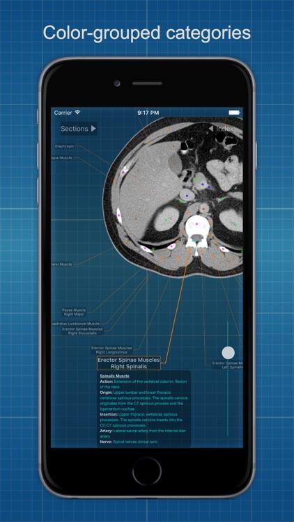 X-Anatomy Basic screenshot-4
