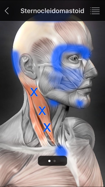 Muscle Trigger Points