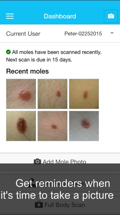 Skin Cancer App - MySkinPal - Map your skin moles screenshot-3