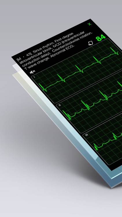 ECG Books - Cardiology Textbooks and Examples screenshot-4