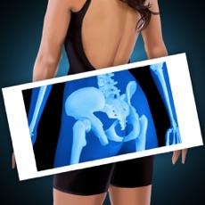 Activities of Xray Scanner Hip Bone Prank