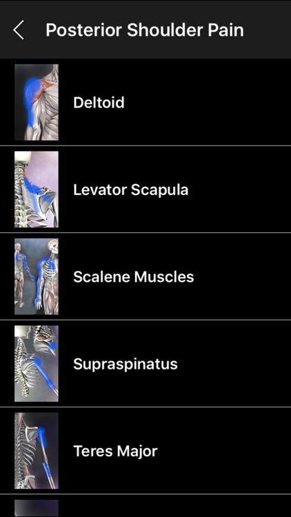 Muscle Trigger Points screenshot-4