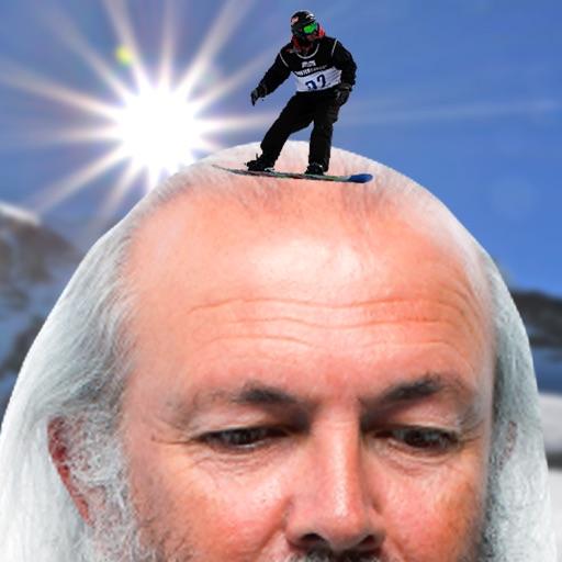Bald Game