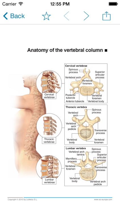 Miniatlas Diseases of the vertebral column screenshot-1