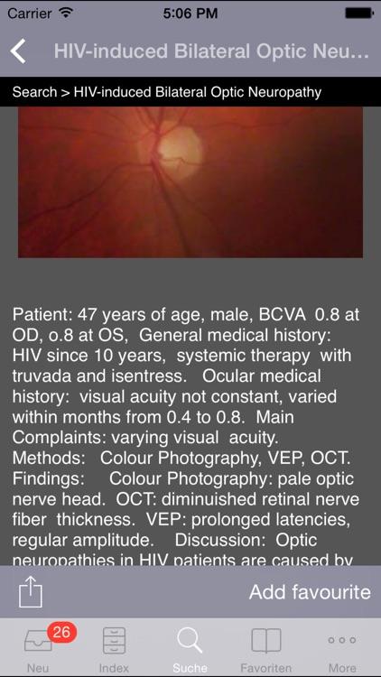 Atlas of Ophthalmology by Onjoph screenshot-4