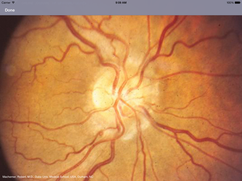 Atlas of Ophthalmology HD by Onjoph screenshot four