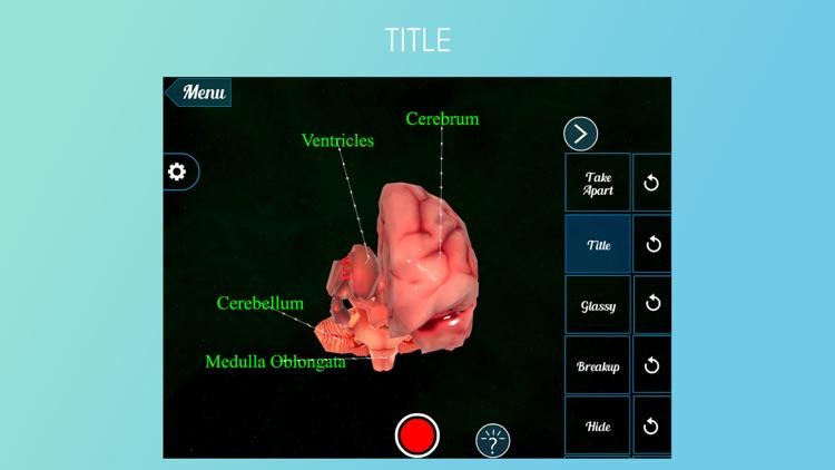 Virtual Reality Vr Human Brain By Trendyworks Technologies Pvt Ltd