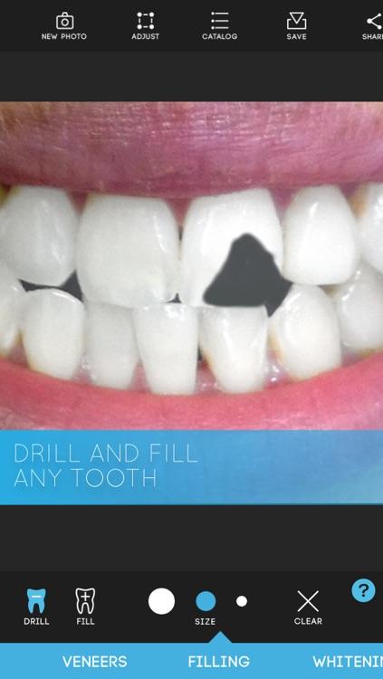 Virtual Dentist - Premium Edition screenshot-3
