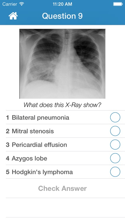 Chest X-Ray Training